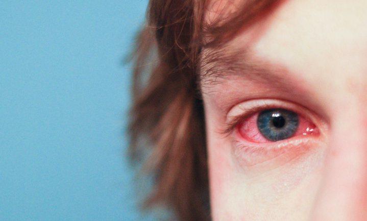 We leven te schoon en daarom neemt het aantal mensen met een allergie toe