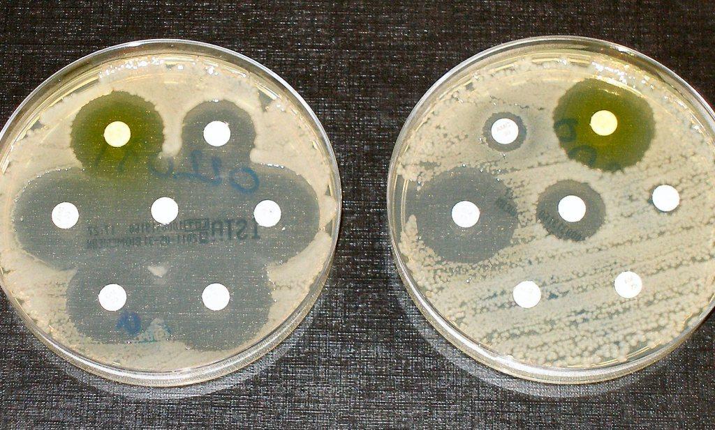 Nieuwe 'superbacterie' is resistent tegen alle soorten antibiotica