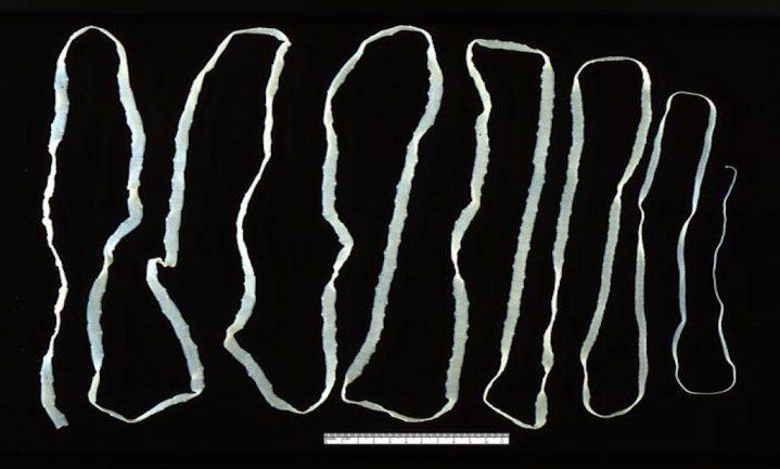 Dieetboekschrijver ontdekt dat een lintworm niet helpt