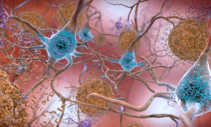 Proef met experimenteel medicijn tegen alzheimer stopgezet