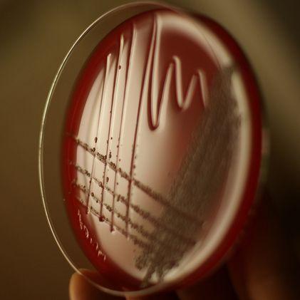 'Hulpmolecuul' maakt antibioticaresistentie ongedaan