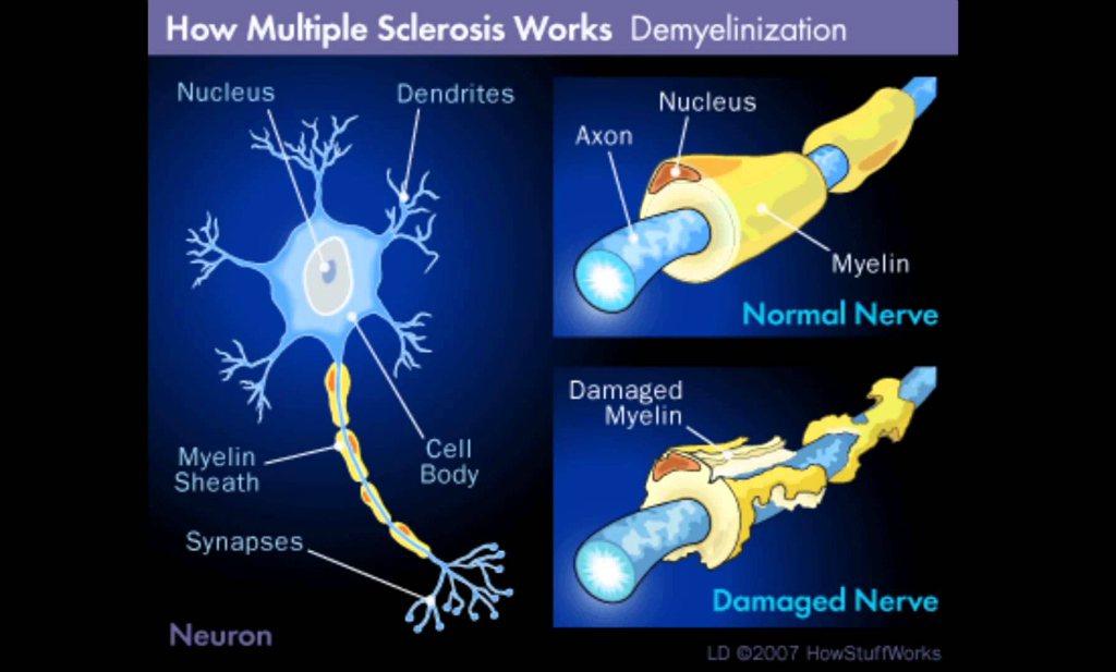 'Vasten lijkt remedie tegen symptomen MS'