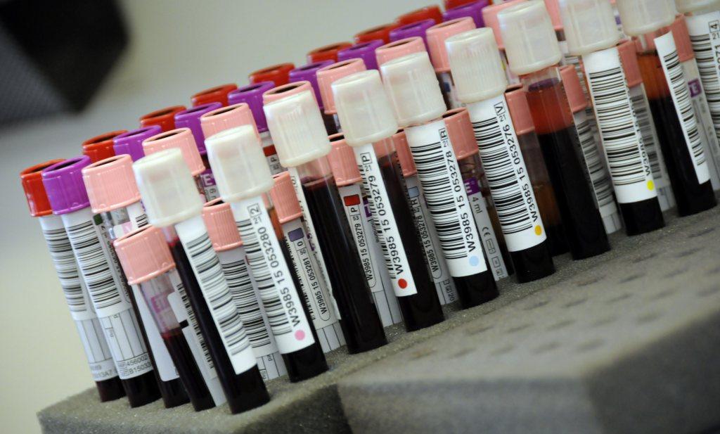 Poeptransplantatie na stamceltransplantatie kan afstotingsverschijnselen verminderen