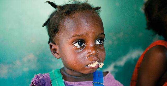 Ondervoeding als kind beïnvloedt de volwassen psyche