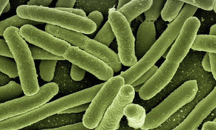 'Infectieziekten mogen we nooit onderschatten'