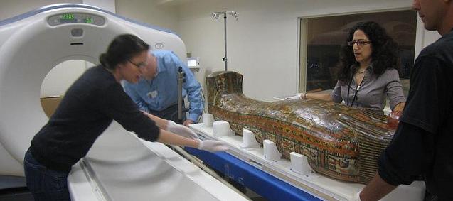 Ook Ötzi had aderverkalking