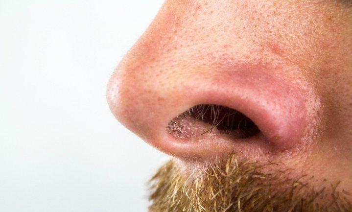 Elektrische neus kan ruiken of je ziek bent