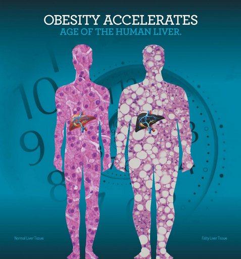 Obesitas laat je lever te snel verouderen