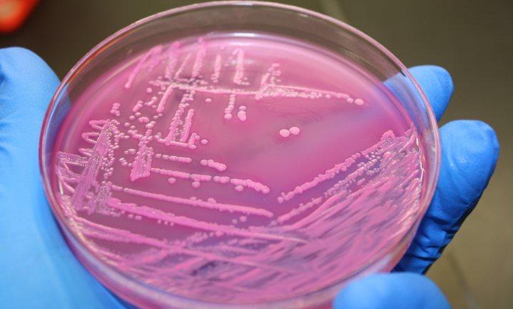 Poepbacterie besmette 23 slaboerderijen via één irrigatiekanaal