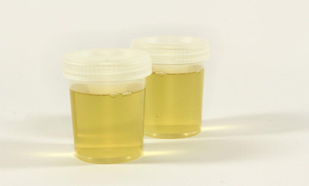 Géén glyfosaat in de urine van Franse boeren