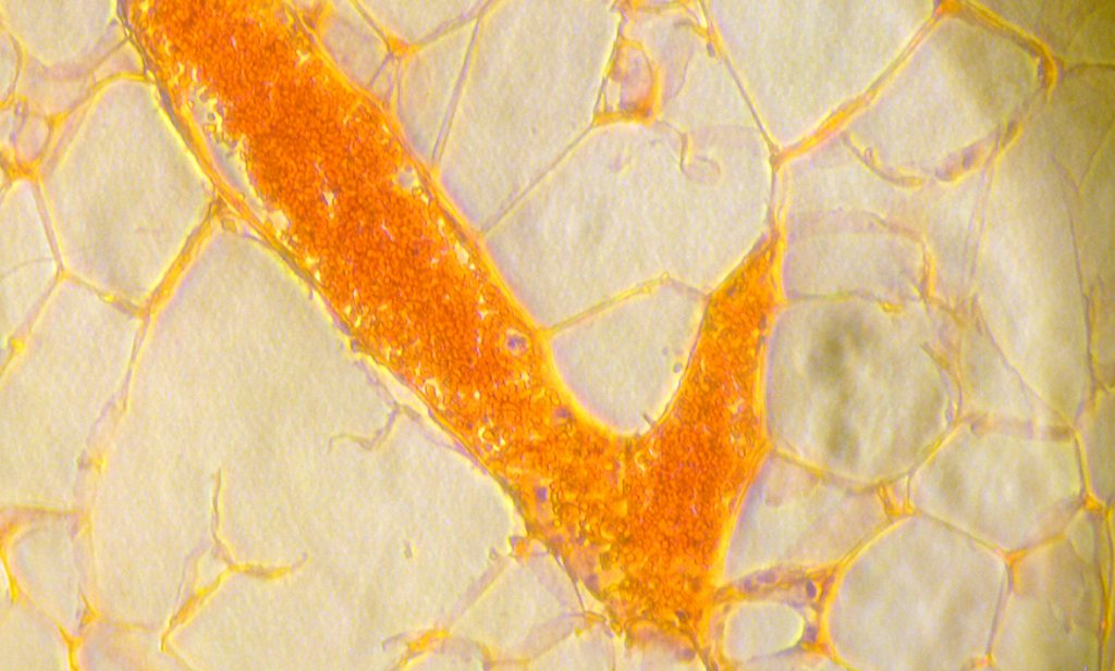 Pas ontdekt: pure vetsmaak is vies