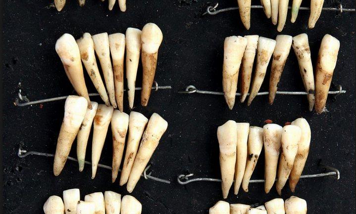'Waterloo teeth' - kunstgebitten met echte tanden